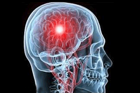 Stroke (falij) and its prevention